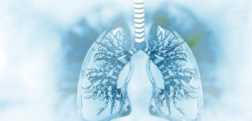 Grafika przedstawiająca zapalenie płuc